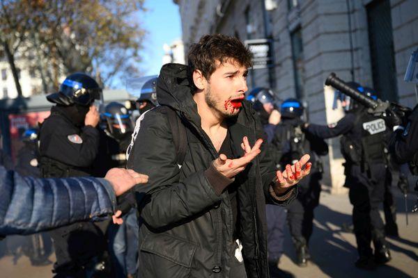 Le jeune homme saigne ensuite de la bouche, et semble avoir été relâché par les forces de l'ordre.