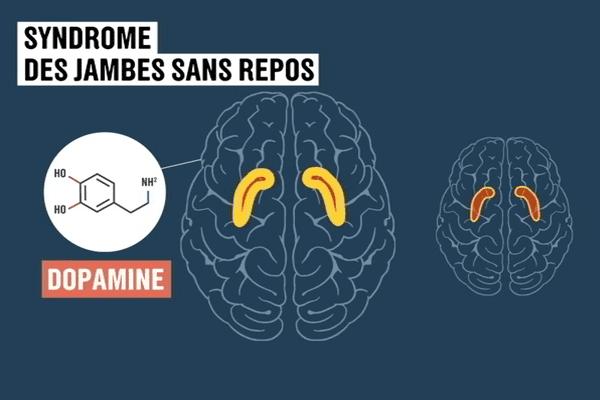 UN mauvais dosage de la dopamine en cause dans la maladie des jambes sans repos