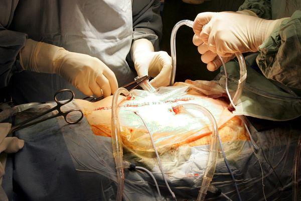 Opérée d'une occlusion intestinale, la patiente est ressortie aveugle de la clinique, photo d'illustration