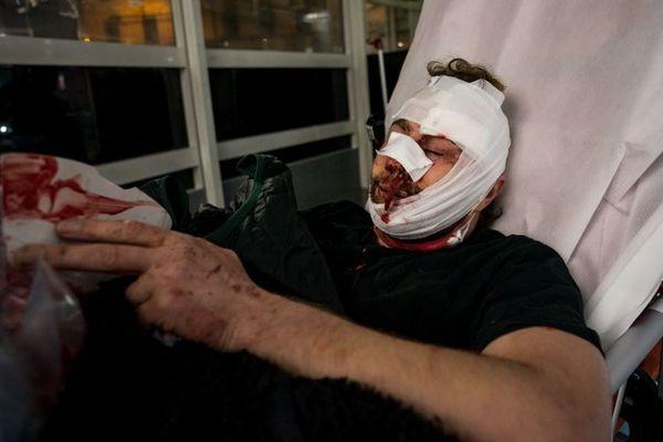 Soigné dans la rue, Ameer al Halbi a ensuite été conduit à l'hôpital, suivi par la consoeur-photographe qui était à ses côtés quand les policiers ont chargé dans une petite rue près de la Bastille, ce 28 novembre à Paris.