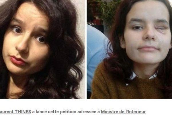 """Fiorina, étudiante blessée lors de la manifestation des  """"Gilets jaunes"""" du 8 décembre"""