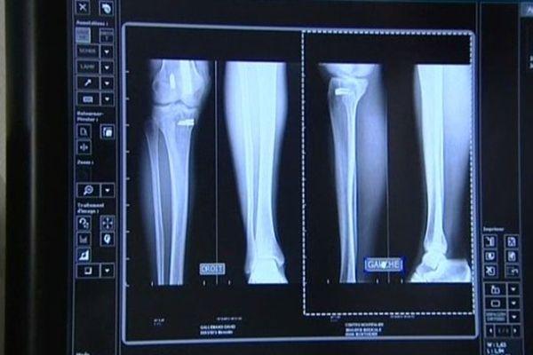 Les manipulateurs en électroradiologie médicale dits « manips » sont en grève.
