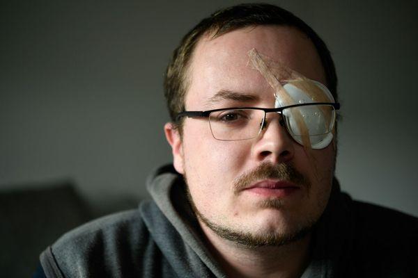 Gwendal Leroy a perdu son œil lors de l'acte X des Gilets jaunes à Rennes.