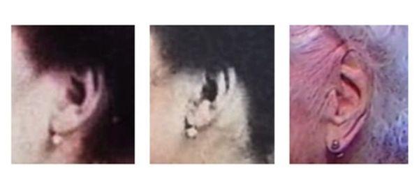 Selon Nicolaï Zak, la forme des oreilles de Jeanne Calment seraient différentes entre la photo des années 1930 et celle prise les dernières années de sa vie