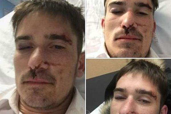 Visage tuméfié d'une des trois victimes. Capture d'écran de la page Facebook du Girofard Bordeaux
