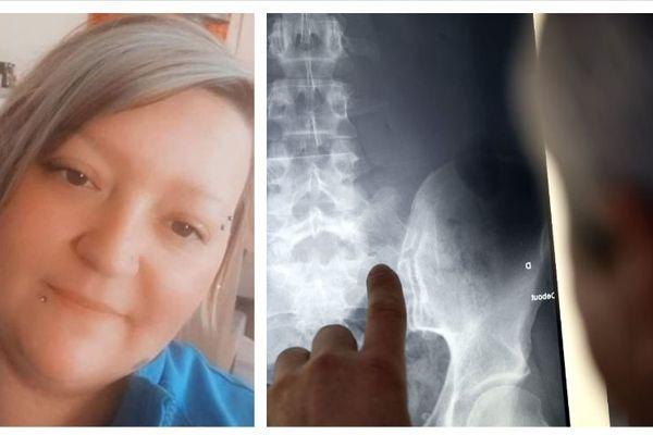 Jennifer Massenot souffre de la spondylarthrite ankylosante.