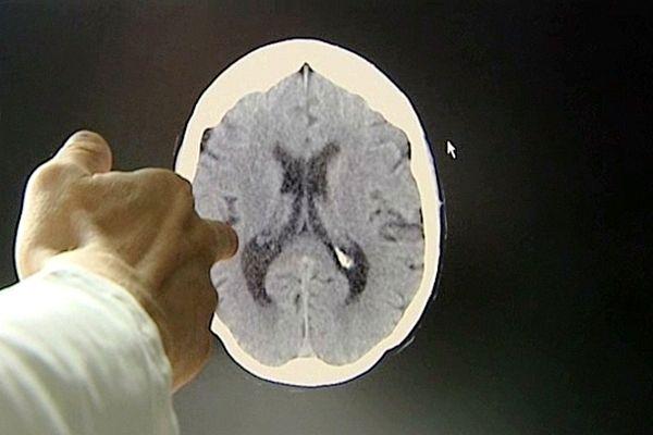 En cas d'AVC, il faut agir vite, car 1 minute perdue = 2 millions de neurones détruits