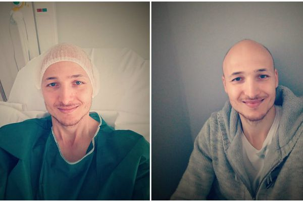 Gionni Cuomo, juste après son opération.