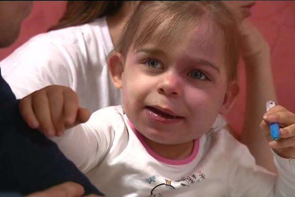 Julia souffre du syndrome de Sturge Weber.