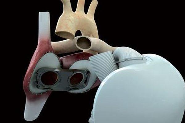 Le 18 decembre 2013 une première médicale mondiale, l'implantation d'un cœur artificiel a été réalisée à l'hopital européen Georges Pompidou, la prochaine implantation pourrait être réalisée à Nantes