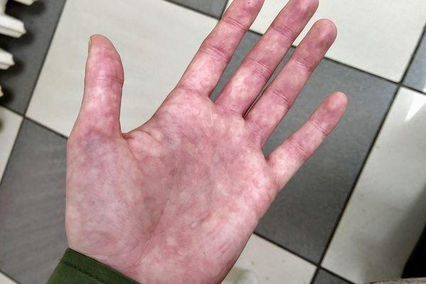 La main de Charlotte, patiente nordiste atteinte du Covid-19 long.