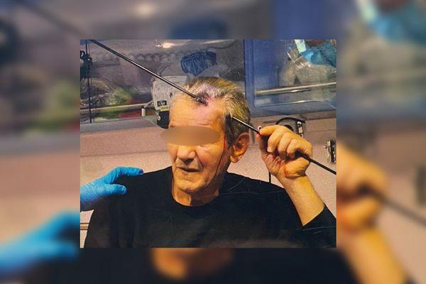 L'homme de nationalité serbe a pris une flèche-harpon de la crâne ce mardi 7 septembre 2021.