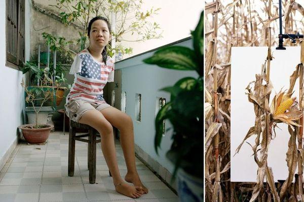Thuy'Linh, 21 ans, Hô Chi Minh-Ville - VietNam. Troisième génération de victimes de l'Agent organge souffrant de malformation génétique.