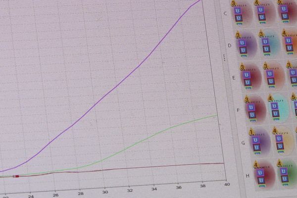 Diagnostic : variant anglais (la courbe verte) pour ce patient