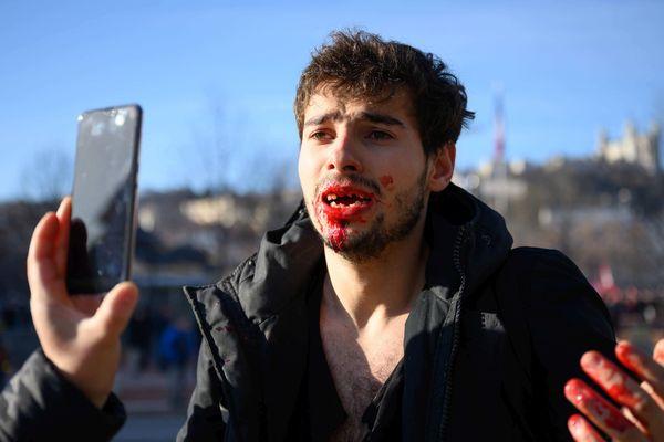 Il aurait 9 dents cassées, selon son témoignage.