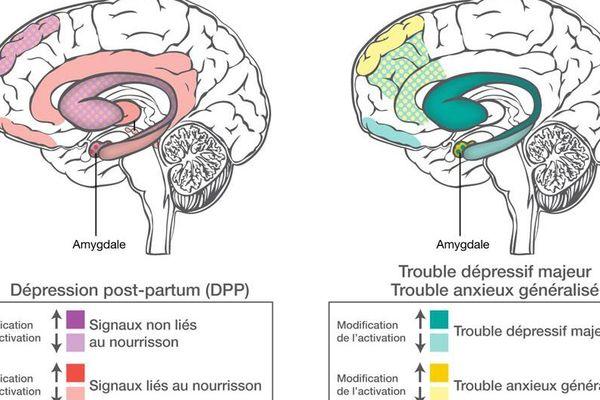 Les zones du cerveau concernées par une dépression post-partum ne sont pas les mêmes que dans un autre type de dépression