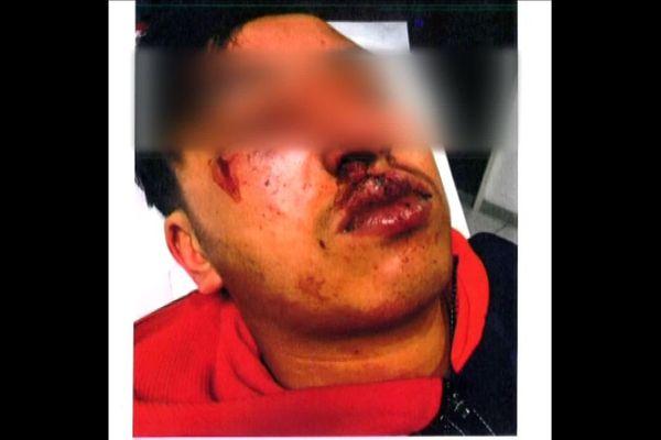 L'agression de l'adolescent a eu lieu le soir du 20 février 2018 dans une impasse du 14e arrondissement de Marseille.