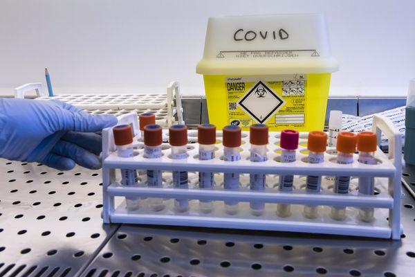 Dépistages du Covid-19 en Centre Hospitalier - Avril 2020
