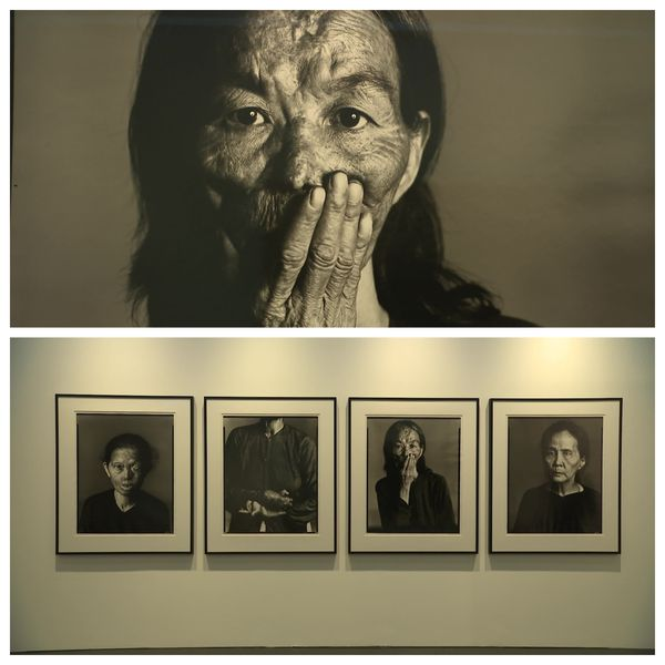 Femmes exposées au Napalm