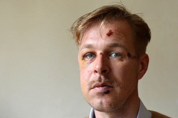 Wilfred de Bruijn, le 11 avril 2013, quelques jours après la violente agression.