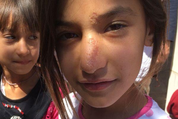 Les enfants des communautés chrétiennes et Yezidis victimes de Daesh ont besoin en urgence d'accompagnement psychologique et de conditions de vie décentes