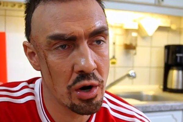 Quand Matze Knop imite Franck Ribéry.