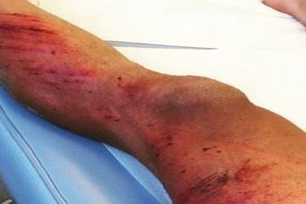 Simon Fourcade a été renversé par une voiture lors d'un entraînement - 5 juin 2015