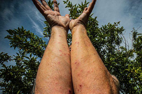 Rougeurs et piqures sur les avant-bras causées par des chenilles urticantes