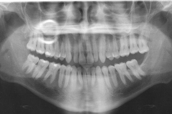 La prévention d'hygiène bucco-dentaire dans les écoles permet de dépister des problèmes de santé et d'inciter les enfants à bien se brosser les dents.