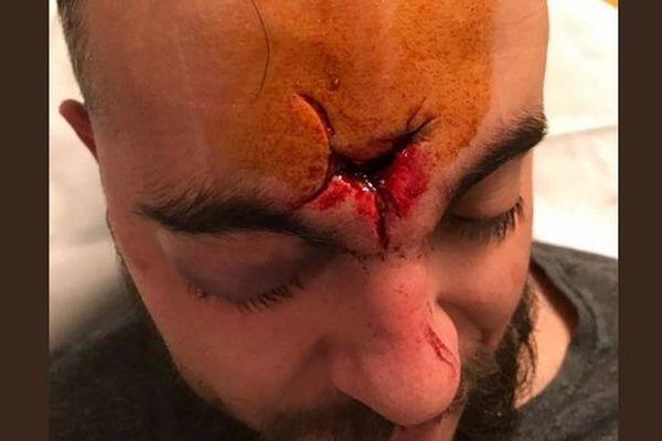 Axel est persuadé qu'il a été victime d'un tir de LBD, par les forces de l'ordre, lors de la manifestation des gilets jaunes, à Montpellier, le 19 janvier 2019.