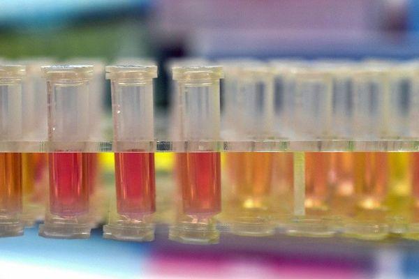 Echantillon en attente de test du Coronavirus 2019-nCov - Février 2020