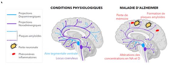 """Alzheimer crée des plaques dans la partie du cerveau appelée """"hippocampe"""""""