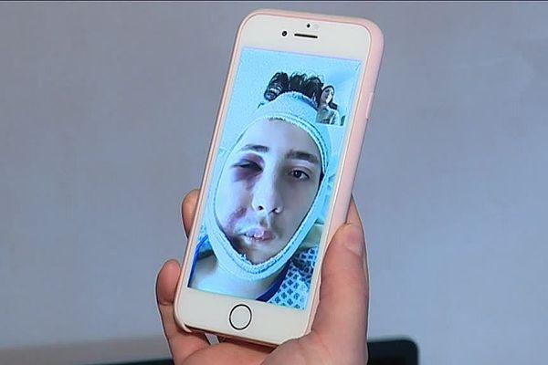 Antonin, l'adolescent blessé dans la manifestation des Gilets Jaunes à Dijon, répond aux questions de nos journalistes par téléphone.