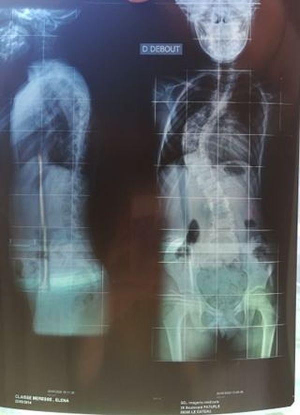 La scoliose est si avancée qu'un des deux poumons, comprimé, se développe mal.