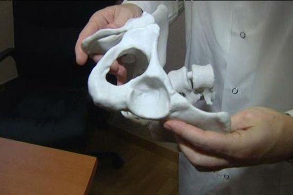 Ici, la maquette à taille réelle du bassin d'une patiente.