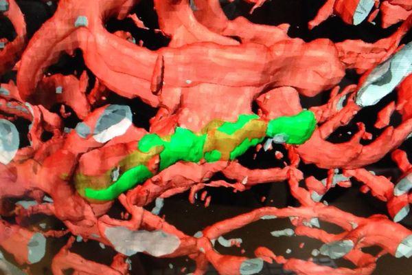 capture d'écran de l'Inserm de Strasbourg, en vert une cellule cancéreuse, en rouge les vaisseaux sanguins, présents dans un cerveau de souris