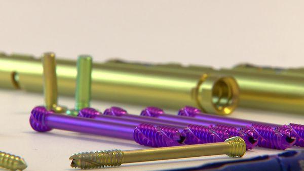 Ces implants sont fabriqués avec une imprimante 3D.