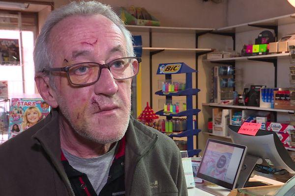 Quatre jours après l'agression, le visage du buraliste braqué est encore tuméfié.