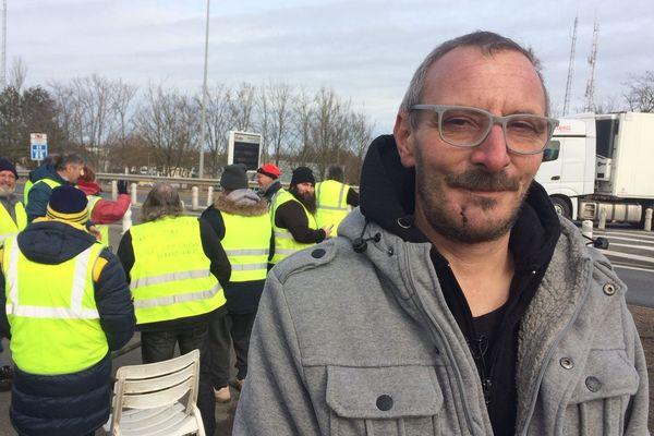 Cyrille Chambenoit, gilet jaune dans l'Allier déclare avoir été blessé à la mâchoire par un tir de Flash-Ball, samedi 12 janvier 2019, lors du rassemblement à Paris.
