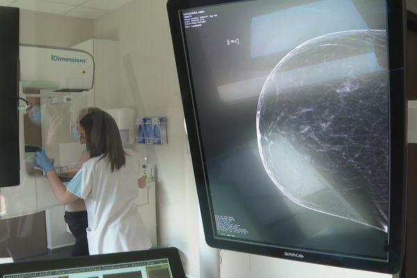 Une mammographie permet d'identifier un cancer du sein précoce.