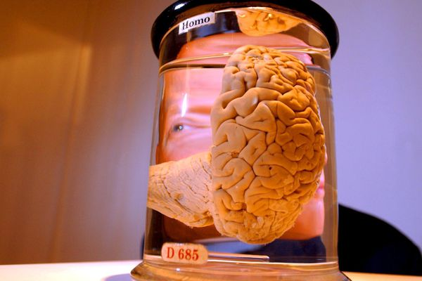 Qui est le plus têtu entre le cerveau ou le chercheur ? Et bien le chercheur dirait-on... (photo d'illustration)