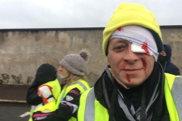 Un Gilet jaune maquillé en blessé pour dénoncer les violences policières.