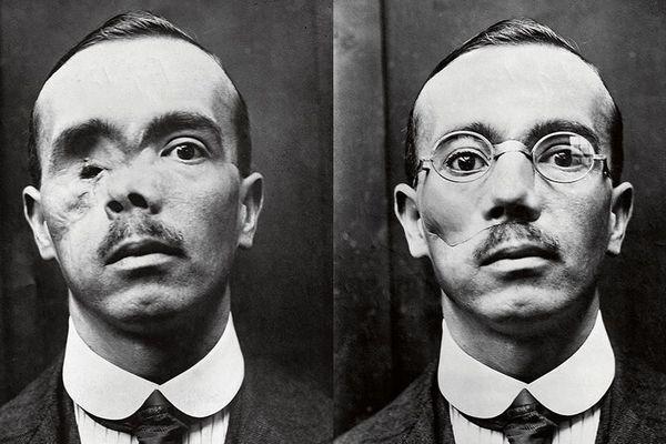 Soldat ayant perdu l'œil droit pendant la première guerre mondiale.