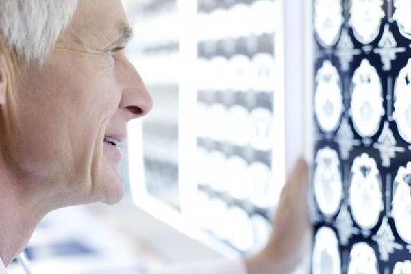 """Une étude, pubiée dans """"The Lancet"""" jeudi 24 octobre 2013, évalue à 16,9 millions le nombre d'AVC survenus à travers le monde en 2010, soit 68% de plus qu'en 1990."""