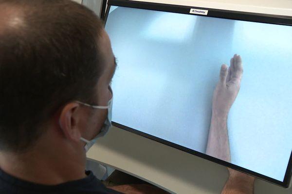 L'image du bras gauche valide est inversée et le cerveau le prend pour le bras droit