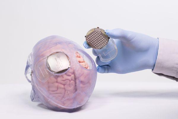 Des capteurs permettent d'enregistrer et décoder l'activité cérébrale du patient pour la traduire en un mouvement.