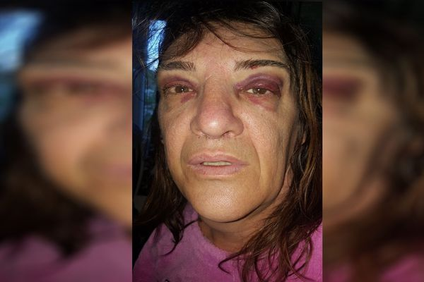Nathalie affirme avoir été agressée en raison de sa transidentité, dans le quartier des Vergnes à Clermont-Ferrand.