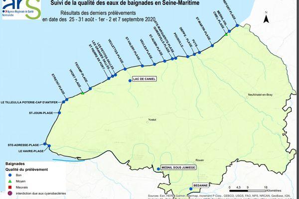 Tous les ans, l'ARS contrôle la qualité des eaux de baignade en Normandie.