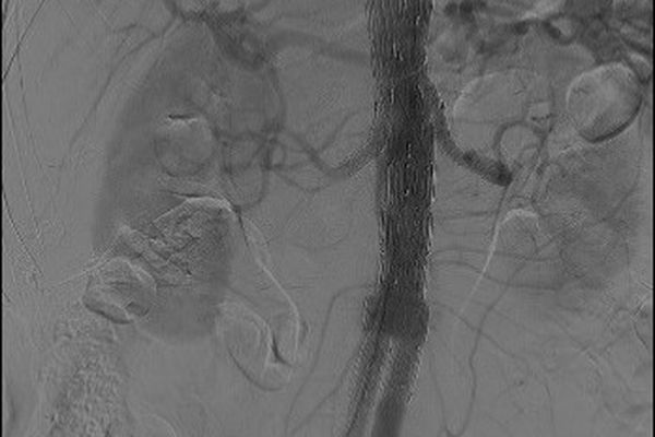 Cette première implantation d'endoprothèse ouvre de nouvelles perspectives de prise en charge des patients.