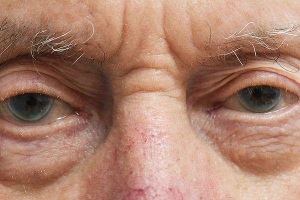Les yeux d'Alphonse Barthel ont beaucoup à dire, tant ils ont été clos durant la Seconde Guerre Mondiale.